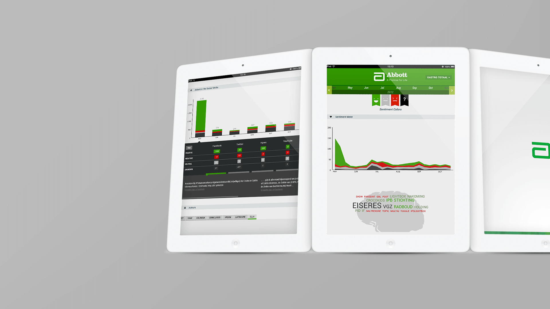 Abbott Project Mobile Mockup by Load